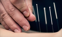 $39 for a One-Hour Accupuncture Session With Initial Consultation at North Nassau Acupuncture LLC