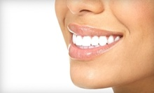 $110 for a One-Hour Laser Treatment at Teeth Whitening by T&G