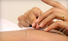 $29 for One Acupuncture Session at Paragon Chiropractic