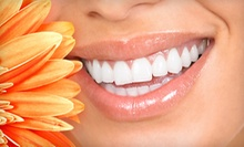 $60 for Full Exam and X-Ray at Sterling Dental
