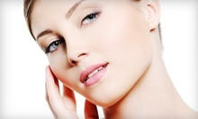 $90 for Microdermabrasion, Chemical Peel and Facial  at Adorned Aesthetics