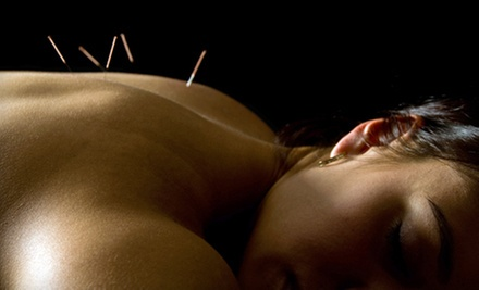 $35 for a Balancing Acupuncture Package at Blue Lotus Acupuncture Clinic