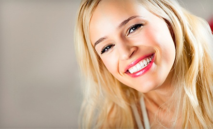 $99 for One Premium,Self Applied 60 Minute Teeth-Whitening Treatment at Organic Smiles