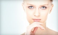 $175 for a Photo Facial at Cosmetic and Laser Specialists