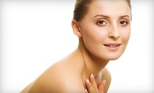 $50 for Microdermabrassion at Body &amp; Soul Spa