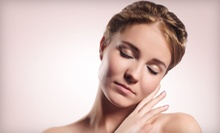 $50 for an ImageMicroDerm Microdermabrasion Treatment  at BioVital MedSpa