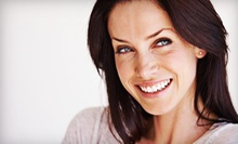 $125 for In-Office Venus Teeth Whitening at Dr. Richard Zalkin