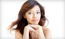 $99 for a DiamondSkin System Microdermabrasion at Mill Creek Skin & Laser Center