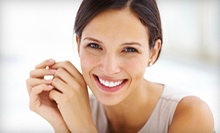 $79 for an Exam, X-Ray, Cleaning and Whitening Kit or Electric Brush at Smile Cafe