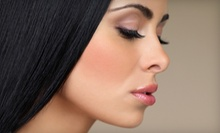 $49 for Microdermabrasion at Amore Laser