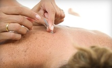 $45 for a 60-Minute Session at Elim Herb & Acupuncture Clinic