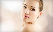 $59 for Microdermabrasion at SilkySkin Laser Center