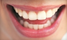 $47 for Dental Cleaning, Exam &amp; X-Rays at San Diego Dental Arts