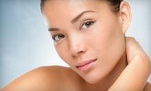 $45 for a Face or Neck Microdermabrasion at Pacific Cielo