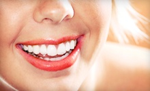 $39 for an Exam, Cleaning and X-Rays at Palisades Dental Care