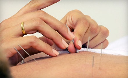$50 for a 90 Minute Private Acupuncture Session at Green Point Acupuncture L.L.C.