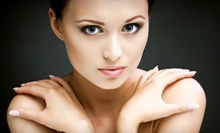 $42 for a Microdermabrasion at Senza Pelo Med Spa