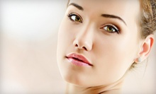 $39 for a Mandelic Acid Peel  at Cadiz Laser Spa