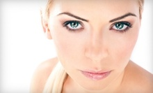 $59 for a Microdermabrasion with Glycolic Treatment  at Peel Palace