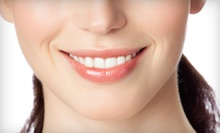 $205 for a Dental Cleaning, Exam and Bitewing X-Rays at A Shop for Smiles San Diego