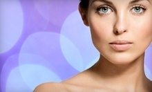 $99 for $150 at Jeta Skin Care and Laser Center