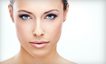 $70 for a Microdermabrasion at Body By Leverett