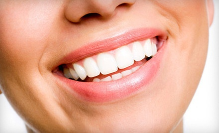 $40 for an Exam, X-Rays, Coronal Polish, and Whitening Tray at Otay Lakes Dental Group