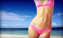 $34 for a Full Bikini Wax at Dashing Skin Spa
