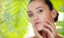 $75 for $150 at L.A. Med Spa Esthetique