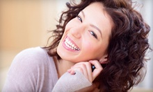 $59 for a 30-Minute Teeth Whitening Session and One Mouthpiece at Beatrice Salon