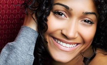 $150 for an In-Office LED Whitening Treatment at Smile Center of Los Gatos