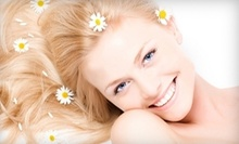 $139 for Teeth Cleaning, Exam, X-Ray and Whitening Trays at Cosmetic Dental of Westwood