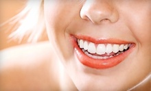 $289 for In-Office Teeth Whitening at Toluca Dental Care