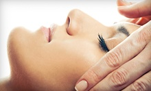 $45 for a Microdermabrasion Treatment at New Image MedSpa