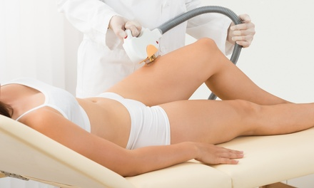 Six Sessions of SHR Hair Removal on Two $149, Three $190 or Four Areas $220 at Urban Beauty Up to $3,600 Value