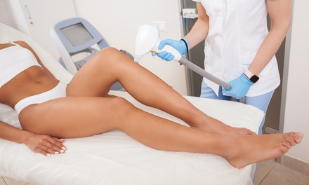 Six Laser Hair-Removal Sessions on One Small, Medium, or Large Area at Ideal Esthetics (Up to 85% Off)