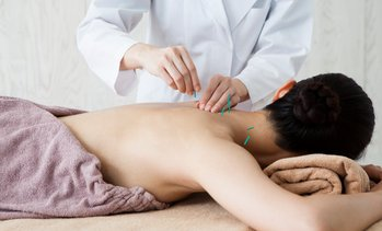 Up to 84% Off Acupuncture at AcupunctureX @ Rapha Clinic