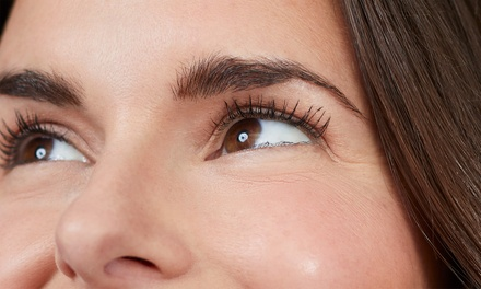 20 or 40 Units of Botox at VIOR Life & Aesthetics (Up to 47% Off)