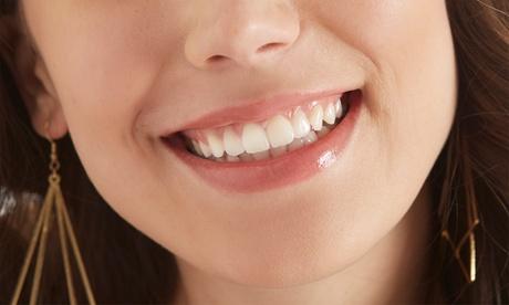 1 o 2 sesiones de blanqueamiento dental led con limpieza y fluorización desde 29,95 € en Clínica Dental Dr. Borrega