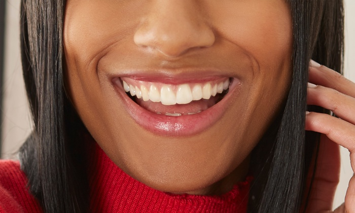 Bright White Smile Up To 49 Off Irving Tx Groupon