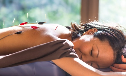 $91 for Acupuncture Detoxification at Invigorating Classical Acupuncture & Massage Therapy ($150 Value)