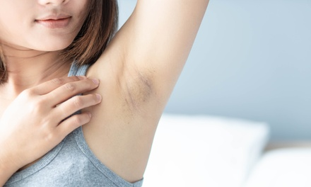 One MiraDry Underarm Sweat-Reduction Treatment at Greenberg Cosmetic Surgery and Dermatology ($2,500 Value)