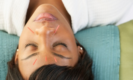 $60 for 60-Minute Acupuncture Treatment at Westport Massage ($120 Value)