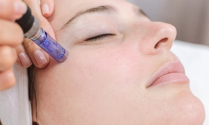 Up to 52% Off Microneedling with PRP Facial at Aspire Med Spa