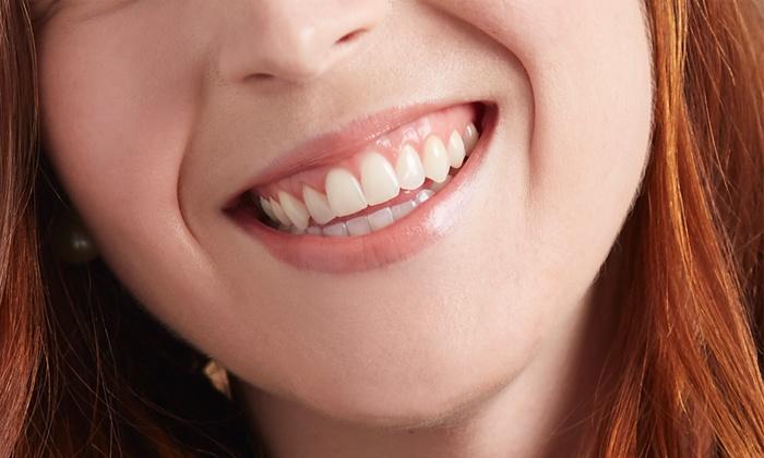 78b359d230e55 Pretty Healthy Smiles Dental Hygiene - From C 61.50 - Brampton