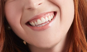(#BonPlanAix-en-Provence) Blanchiment dentaire sans peroxyde  -49% réduction