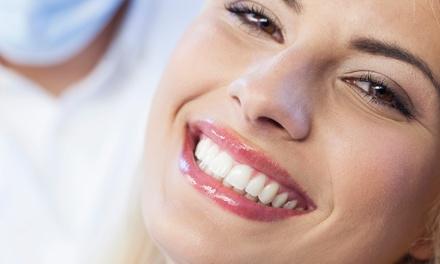 Pulizia denti e sbiancamento led a 39,90€euro