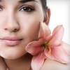 53% Off Microdermabrasion