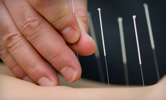 Coastal Acupuncture - Mount Pleasant: One, Two, or Three Acupuncture Treatments at Coastal Acupuncture in Mount Pleasant (Up to 57% Off)