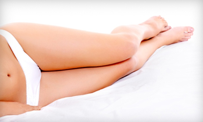 Radiant Skin Solutions - Lake City: $99 for Two Spider-Vein Treatments at Radiant Skin Solutions ($500 Value)